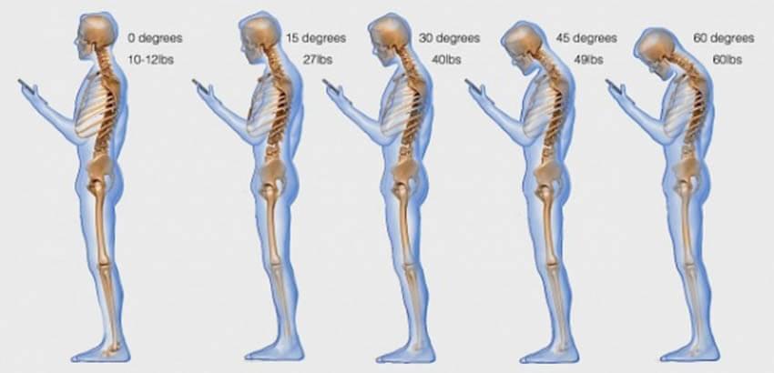 Κοιτάζοντας λάθος το κινητό ή το tablet, ασκούμε πίεση 27 κιλών στον αυχένα!